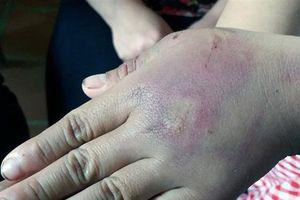 Bé gái 8 tuổi ở Thanh Hóa bị bố đánh thâm tím người