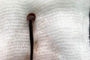 Gắp con đĩa dài 4cm trong hốc mũi bệnh nhân