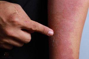 Cách chữa viêm da cơ địa ở tay, chân, mặt người lớn theo chuyên gia