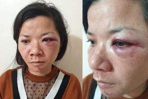 Xử phạt hành chính người chồng đánh vợ dã man tối mùng 2 Tết