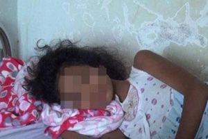 1 bé tử vong, 2 bé nhập viện nghi do ăn bưởi