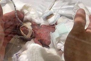 Cậu bé nhỏ nhất thế giới: 268 g vẫn sống sót!