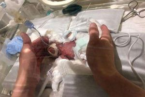 Em bé sinh non nhỏ nhất thế giới chỉ nặng bằng một quả cam