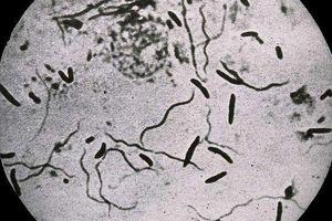 Vi khuẩn có thể tự rơi vào trạng thái như 'xác sống' để sinh tồn