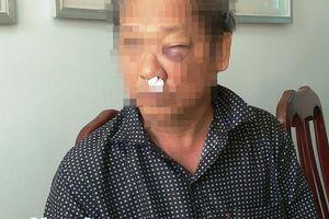 Thông tin mới nhất vụ phóng viên VTV bị đánh sau khi báo tin bắt 'đất tặc'