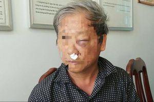 Chủ tịch tỉnh Kon Tum yêu cầu xử lý nghiêm các đối tượng hành hung nhà báo VTV