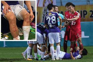 HLV Chu Đình Nghiêm: 'Trọng tài đáng phải rút thẻ đỏ đuổi Quế Ngọc Hải'