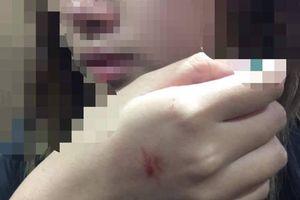 Người bị tố cưỡng hôn nữ sinh trong thang máy chưa trình diện