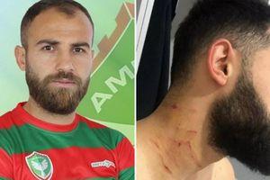 Cầm vật sắc cứa cổ đối phương, cầu thủ Thổ Nhĩ Kỳ bị cấm trọn đời