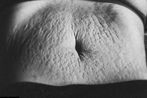 9 sự thay đổi vĩnh viễn của cơ thể phụ nữ sau sinh, không muốn cũng phải chịu