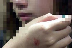 VKSND vào cuộc vụ cô gái bị sàm sỡ trong thang máy