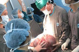 'Giải cứu' người phụ nữ mang khối u khổng lồ nặng 25 kg