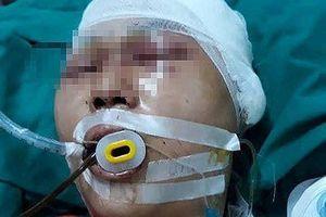Gia đình nam sinh bị đánh đến mức phải mổ não cầu cứu
