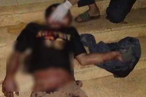 Đắk Lắk: Cứu sống nạn nhân bị bạn rượu cắt cổ