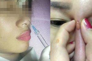 Từ vụ cô gái bị mù mắt sau khi nâng mũi, chuyên gia chỉ cách làm đẹp an toàn