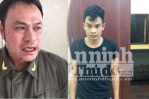 Bắt đối tượng thứ 2 vụ nhân viên sân bay Nội Bài bị đánh gãy răng