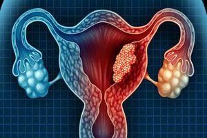 Những vấn đề chị em phụ nữ cần biết về buồng trứng