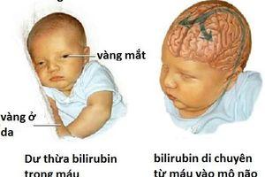 Đừng để ân hận cả đời vì chủ quan với bệnh vàng da của trẻ mới sinh