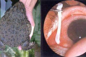 Đắp da ếch chữa đau mắt, coi chừng ấu trùng sán thi nhau 'nằm ổ' dưới mi mắt