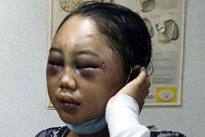 Chấn động những vụ ngược đãi người giúp việc nước ngoài tại châu Á