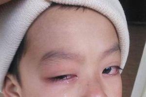 Học sinh lớp 1 nghi bị cô giáo đánh đã có kết quả giám định sức khỏe
