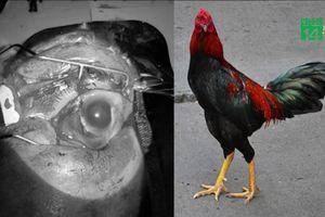 Cho gà ăn, cụ bà Quảng Bình bị gà mổ vỡ nhãn cầu