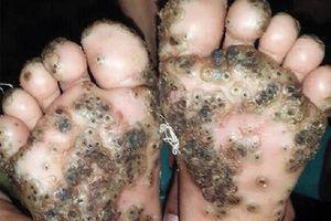 Rùng mình với bàn chân bé gái 10 tuổi bị bọ chét tấn công