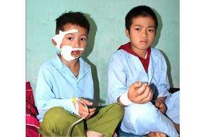 Trên đường đi học về, hai cháu bé dân tộc bị chó cắn rách mặt, nát cẳng tay