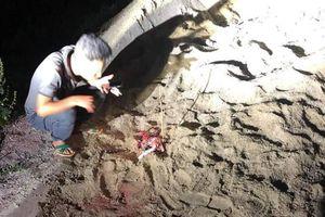Kinh hoàng bé trai 7 tuổi bị hàng chục con chó dữ tấn công phải nhập viện cấp cứu
