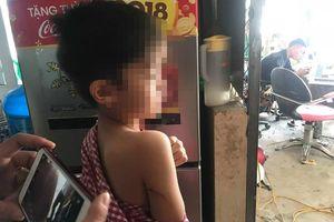 Đàn chó dữ cắn chết bé trai 7 tuổi từng tấn công nhiều người nhưng chủ chó ngang ngược không nhốt