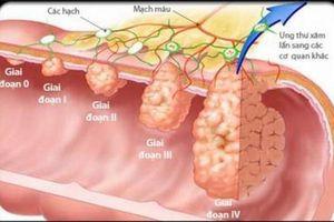 Hà Nội: Hơn 21.400 người dương tính với ung thư đại trực tràng