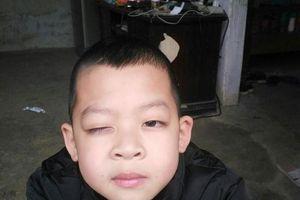 Nỗi buồn ông bố Lạng Sơn có con trai nghi bị cô giáo đánh vào mắt tổn thương 18%