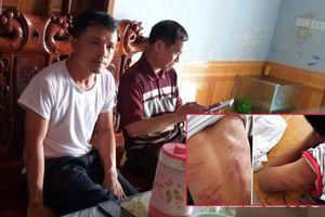 Nam sinh lớp 8 ở Hà Tĩnh bị bố đẻ đánh đập dã man