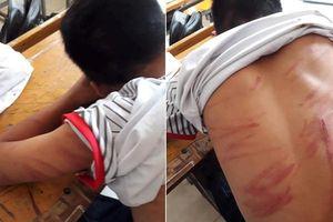 79 vết thương trên người, nam sinh lớp 8 hoảng hốt kể lại chuyện bị bố đẻ bạo hành