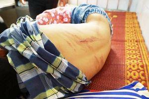 Người bố đánh con đến ngất trên lớp ở Hà Tĩnh sẽ bị xử lý như thế nào?