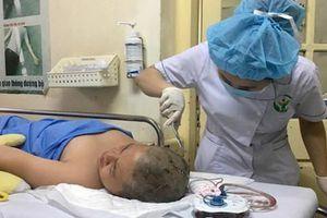 Nam sinh bị cọc sắt cắm vào đầu trong giờ học thể dục phải mổ tạo hình sọ não