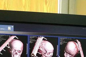 Học sinh lớp 6 bị đinh trên cột đỡ xà đổ trúng đầu khi học nhảy cao gây chấn thương nghiêm trọng