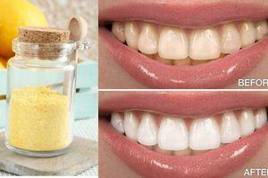 Cách làm trắng răng tức thì chỉ trong 2 phút với hỗn hợp tự chế từ tự nhiên