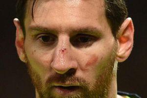 Barcelona nhận tin 'sét đánh' về Messi