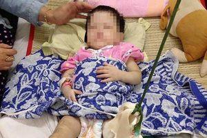 Quận 9: Bé gái 1 tuổi bị mẹ nuôi đánh gãy chân