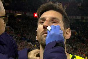 'Messi va chạm với Smalling không khác gì bị tàu cán qua'