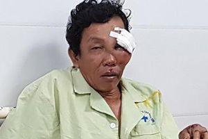 6 nạn nhân bị thương do Lexus biển 6666 tông đã qua cơn nguy kịch