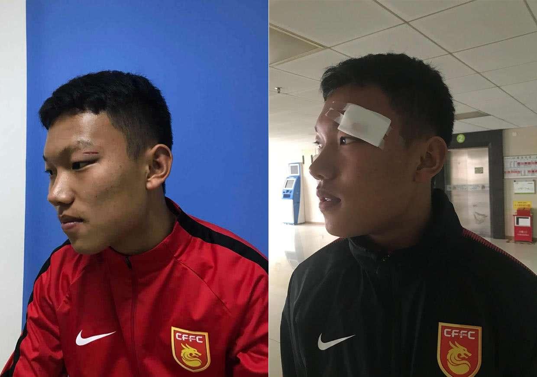 Đấm cầu thủ Trung Quốc chảy máu mặt, đàn em Quang Hải nhận án phạt cực nặng