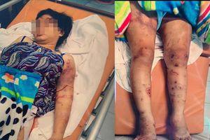 Thai phụ bị tra tấn đến sẩy thai: Họ còn dùng nhựa đốt và nhỏ lên người tôi