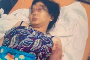 Vụ cô gái mang bầu 6 tháng bị tra tấn đến sảy thai: Người nhặt ve chai hoảng sợ khi thấy thi thể bé sơ sinh trong túi nylon