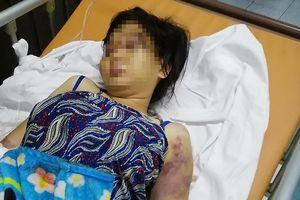Phẫn nộ: 22 ngày cô gái bị tra tấn dã man, dẫn đến sẩy thai