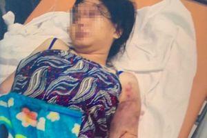 Vụ cô gái bị tra tấn đến sẩy thai: Công an truy tìm đối tượng cầm đầu
