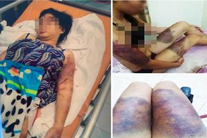 Thai phụ bị tra tấn dã man đến sẩy thai bàng hoàng kể lại sự việc