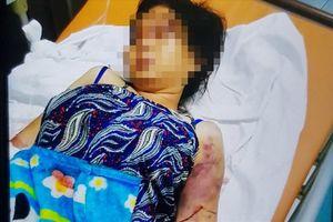 Nhóm đánh sảy thai cô gái 18 tuổi ra giá 40 triệu để bị hại bãi nại