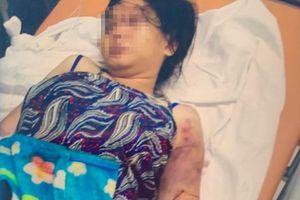 Vụ cô gái bị giam, tra tấn đến sảy thai: Cần khởi tố vụ án để điều tra